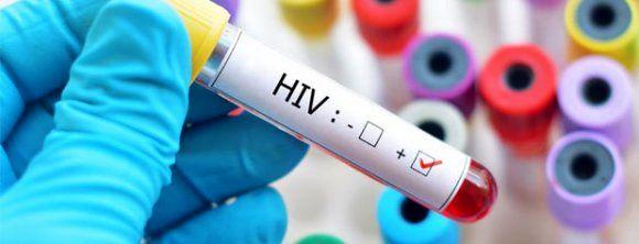 ماجرای ابتلای اهالی یک روستا به ایدز + توضیحات وزارت بهداشت